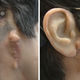 auricular cosmetic prosthesis / adult