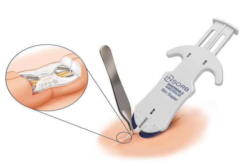 Skin Stapler INSORB subcuticular skin stapler
