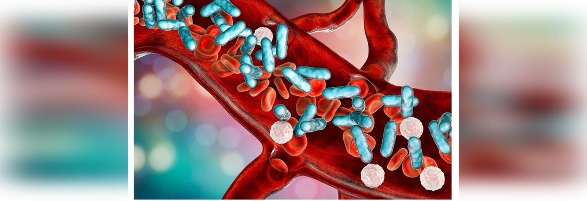 Biomaterial-Based Vaccine Against Bacterial Infection