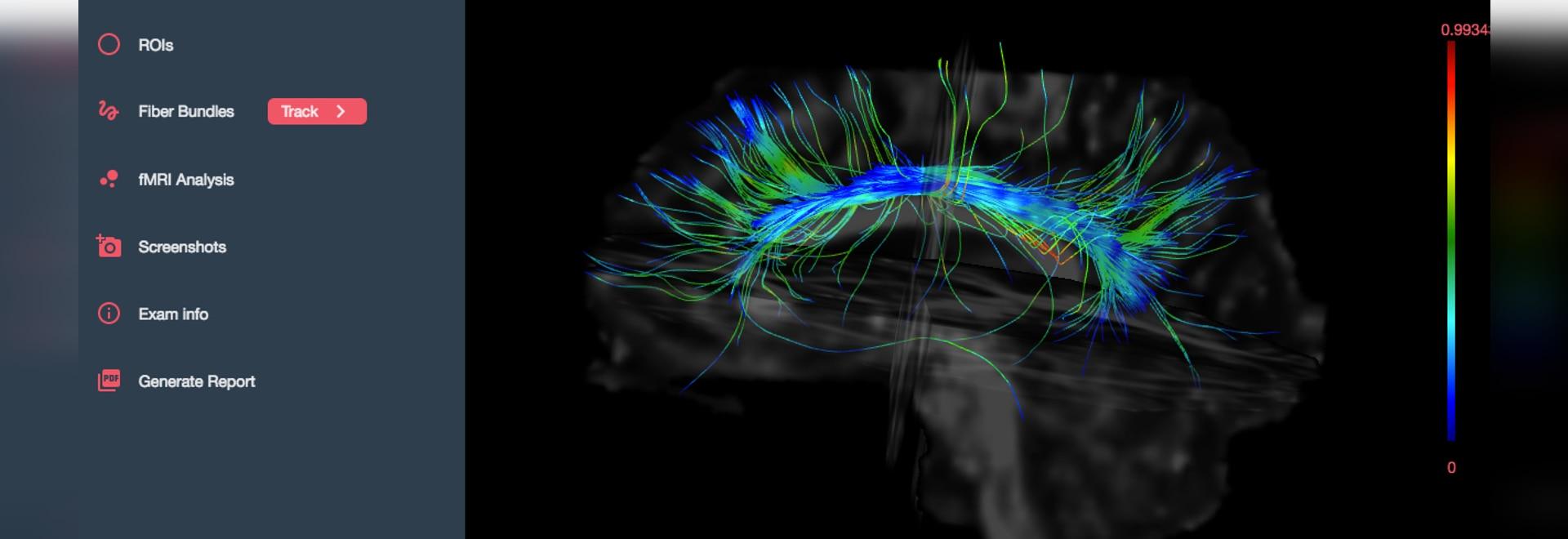 Brainance MD - Neuroimaging software
