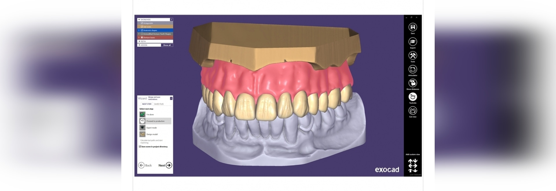 The exocad Plovdiv release allows the design of single-arch dentures, with the simplified model analysis based on the opposing arch situation. The prosthetic tooth setup is defined with fewer click...