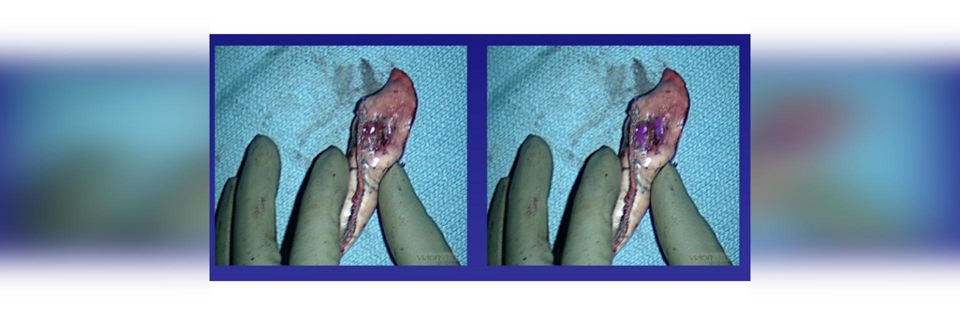 Margin assessment using white light (left) versus intraoperative molecular imaging with OTL38 (right)