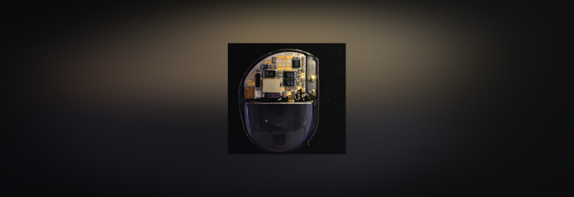 A picture Shelby Kobes took of a pacemaker's electronic innards.