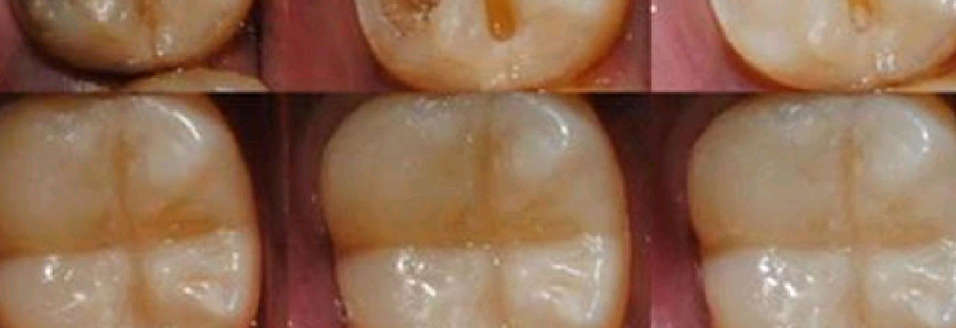 Scientists found a way to regrow precious tooth enamel