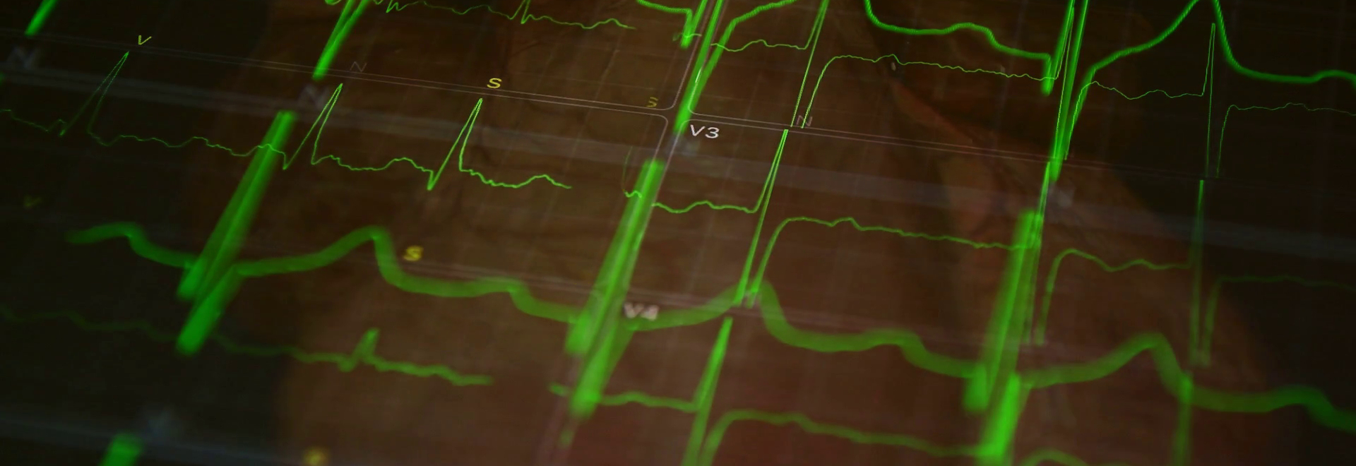 Surprising Discovery Could Lead to New Treatments for Strokes and Cardiac Arrest