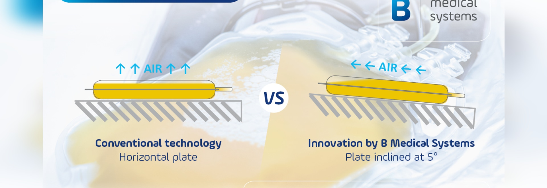Technological innovation by B Medical Systems for Rapid and Uniform Cooling of Plasma