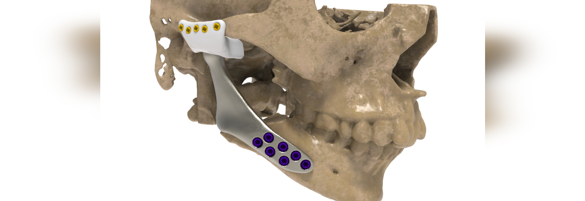 Unilateral patient-specific temporomandibular joint replacement