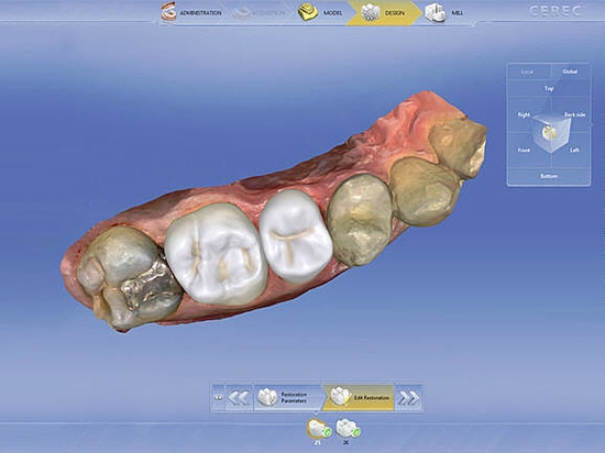 30 years of CEREC: Innovation brings more flexibility and efficiency