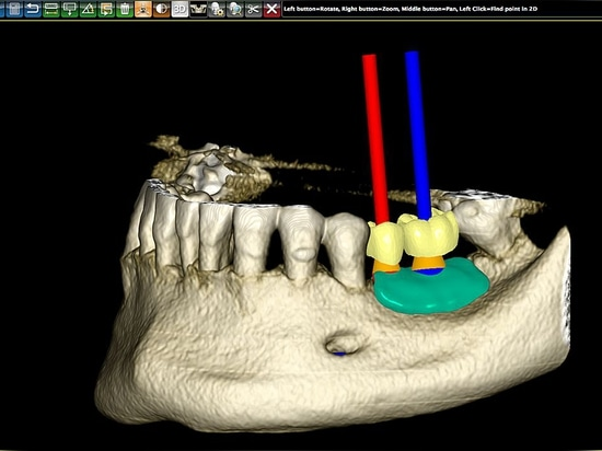 PlastyCAD : Medical modelling software for doctors and technicians