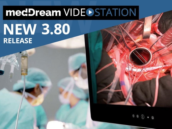 New release of Video Station