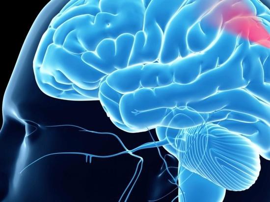 Brain Bleeds Begone