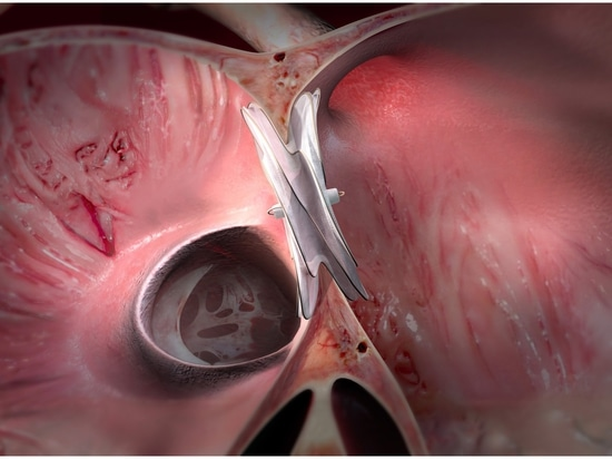 GORE CARDIOFORM Approved by FDA to Treat Atrial Septal Defects