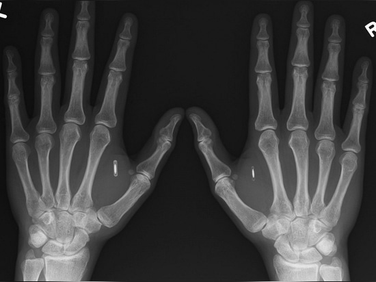 The Rise of Biochipping