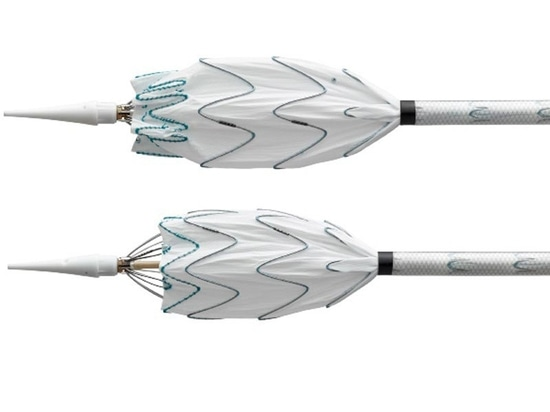 Valiant Navion thoracic stent graft