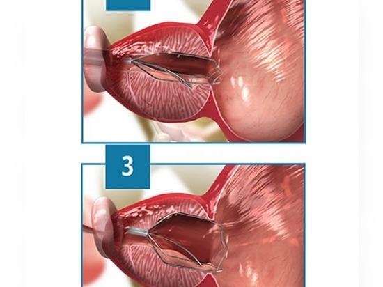 iTind for Benign Prostatic Hyperplasia Gets FDA Green Light