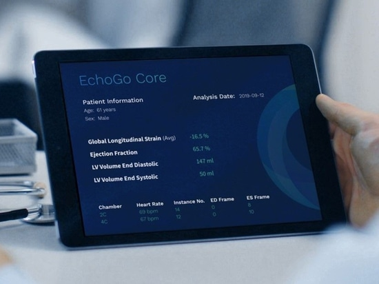 Mayo Clinic and Ultromics will use the EchoGo Core to provide a map of the 'novel cardiac features' of COVID-19 and help physicians rapidly triage and treat high-risk patients.