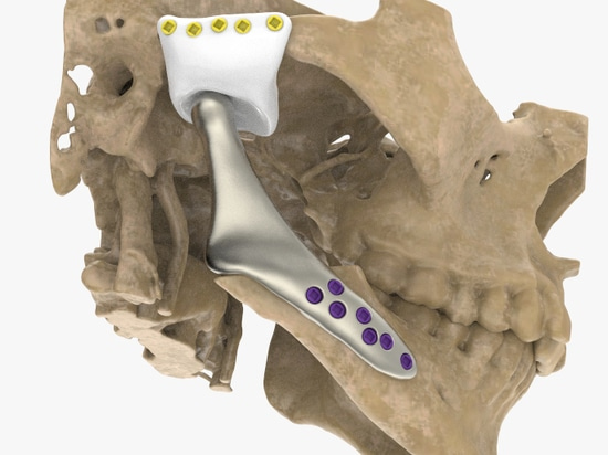 Unilateral patient-specific temporomandibular joint replacement for treating multicystic giant cell tumor
