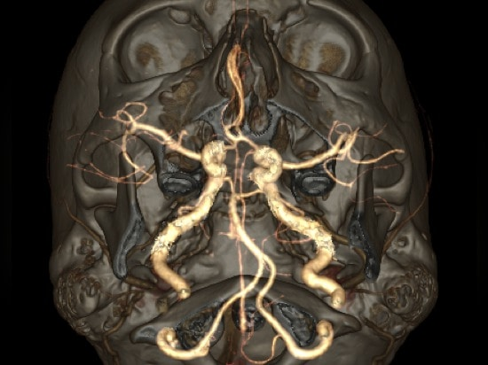 It took the Revolution CT scanner just one second to acquire this super-fast, low-dose head image of a 17-year-old patient. Image credit: Dr. J-L Sablayrolles, Centre Cardiologique du Nord, Saint-D...