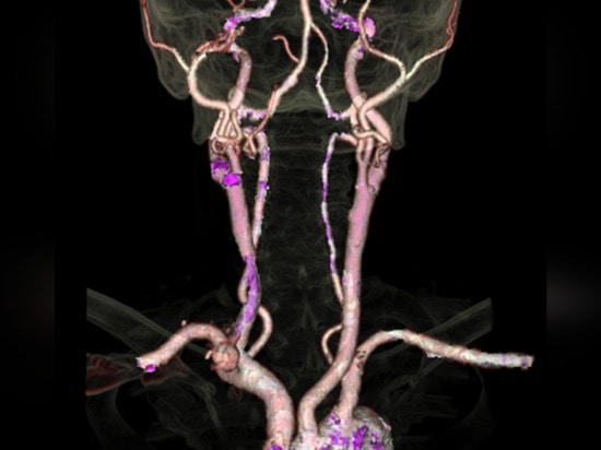 This low-dose image of the circle of Willis, which supplies blodd to the brain, took 2 seconds to acquire. Image credit: Dr. J-L Sablayrolles, Centre Cardiologique du Nord, Saint-Denis, France