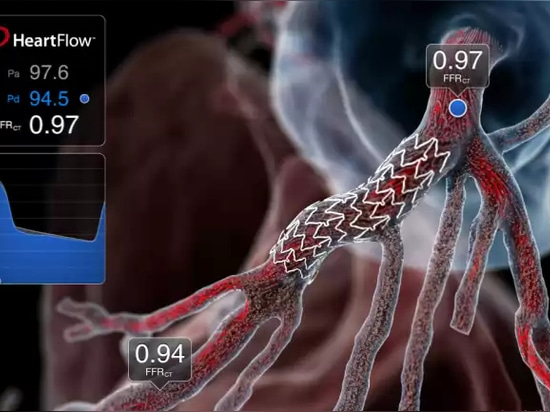 3D Imaging Tool Detects Life-Threatening Heart Disease in 20 Minutes
