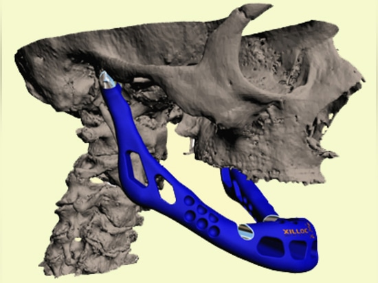 A 3-D printed jaw implant.