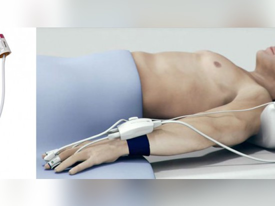 NON-INVASIVE HEMODYNAMIC MONITORING POSSIBLE WITH CLEARSIGHT