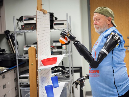 FIRST MAN TO CONTROL TWO PROSTHETIC ARMS WITH HIS MIND