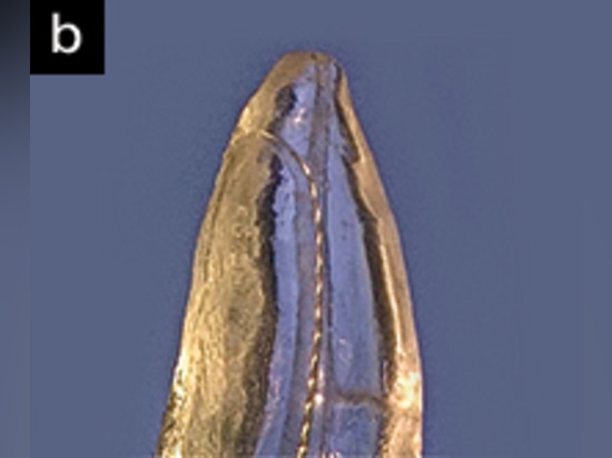 Close-up of TrueTooth Replica showing a bent No. 10 K-file advancing into an apical accessory canal. (Courtesy of Dental Education Laboratories.)