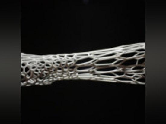 CORTEX 3D-PRINTED CAST