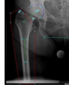 ヴィジュアリゼーション用ソフト / 制御 / 手術前プランニング用 / 測定用