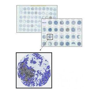 分析ソフトウェアモジュール / 病理組織実験用