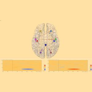 脳波図ソフト