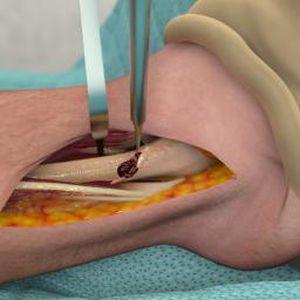 実習用iOS アプリケーション / シミュレーション / 解剖学 / 整形外科