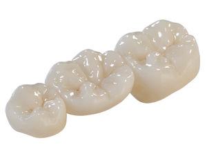 ジルコニア製歯科用ブリッジ