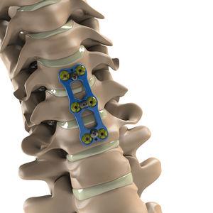頸椎用関節固定プレート