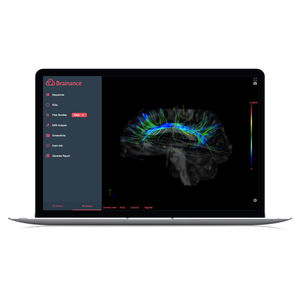 イメージ分析ソフト / 3D ヴィジュアリゼーション / DICOMビジュアリゼーション用 / リポーティング用