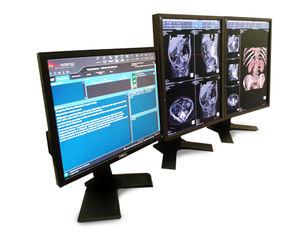 可視化ソフト / 診断 / 医療画像