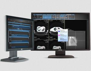 放射線治療用ソフト