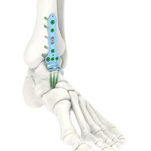 足首関節固定プレート