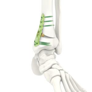 脛骨骨切りプレート