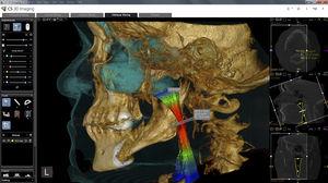 分析ソフトウェアモジュール / 3D ヴィジュアリゼーション / 測定用 / コンディショニング