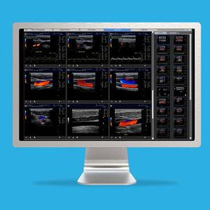 ヴィジュアリゼーション用ソフト / 超音波画像診断用 / 産婦人科検査用 / 個人記録