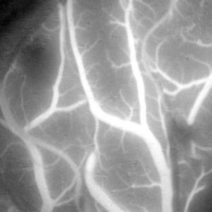 手術顕微鏡用ビデオカメラ