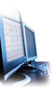 心電図ソフト