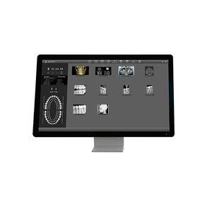 デンタルイメージング用ソフト