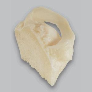 同種移植メニスカスインプラント