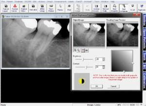 画像取込ソフト / データ管理 / 診断 / デンタルイメージング用
