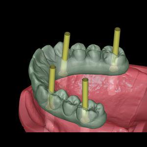 インプラント用歯科用ソフト