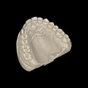 歯科技工所用ソフト