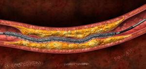 冠状動脈ステント